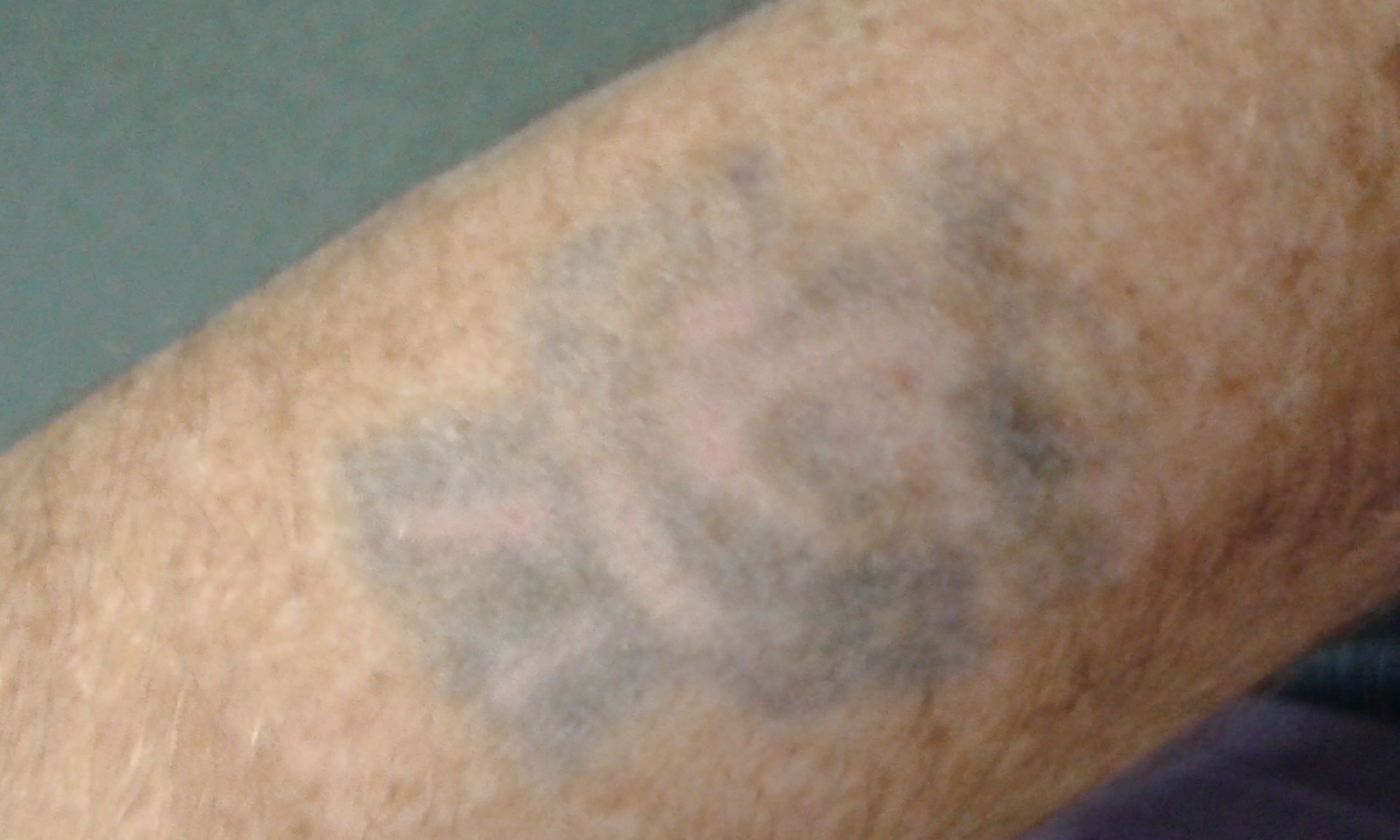 Go Ink Tattoo Removal Welwyn | Tattoo Removal - photo#21